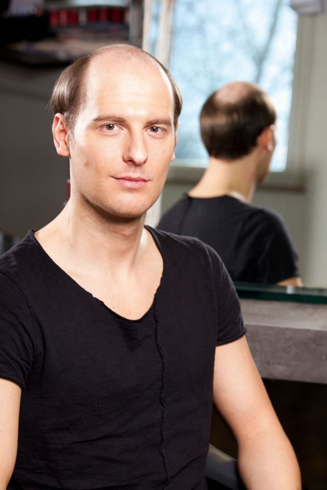 Haarausfall Und Haarersatz Für Männer My Hair And Mede